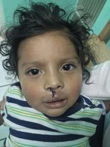 Carlos drei Tage nach der Lippenoperation